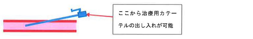Pta シャント